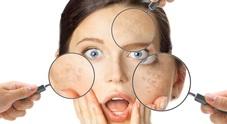 Imperfezioni estetiche e imbarazzo: quando la pelle è fonte di ansia