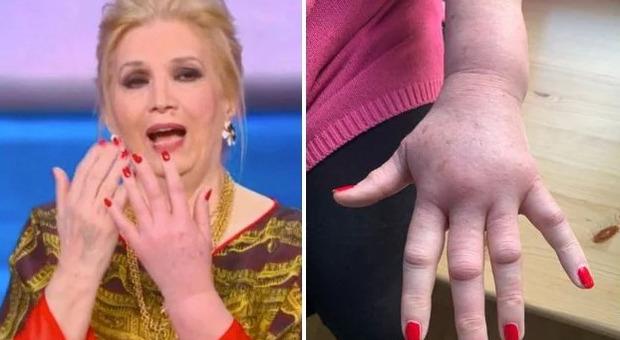 Iva Zanicchi e la mano gonfia, la reazione allergica dopo la puntura di una vespa: come sta oggi