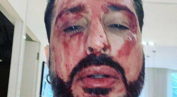 Fabrizio Corona, l'avvocato rivela come sta: «Ha rischiato di ammazzarsi sul serio»