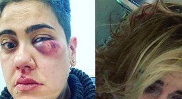 Seguita e picchiata in casa al grido di «muori lesbica»: aggressione choc