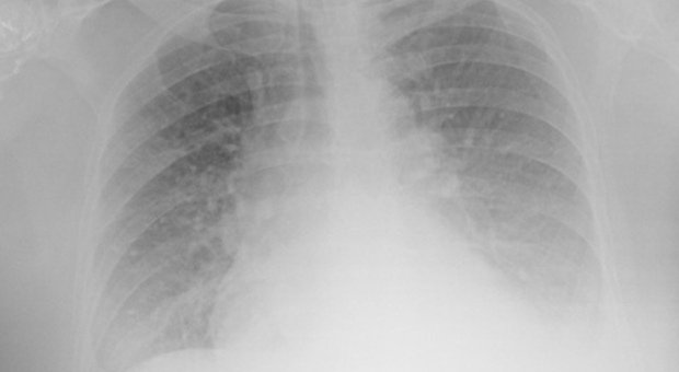 L'ecografia è più efficace del tampone per scovare il Covid: lo studio dell'ospedale Molinette di Torino