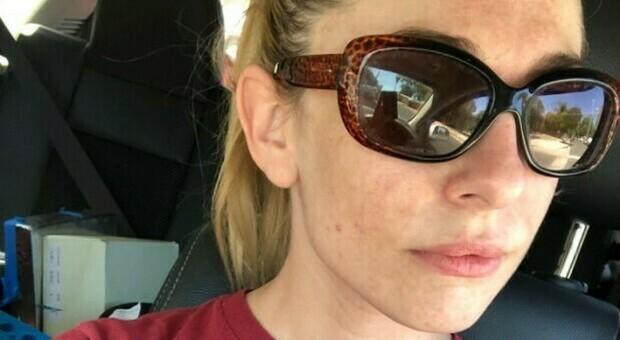 Dahlia Sky, 31 anni, malata terminale di cancro: si è tolta la vita sparandosi dentro la sua auto