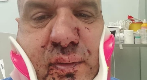 Porto Cervo, turista picchia un operatore del 118 davanti a una discoteca: «Spostati, mi rovini le vacanze!»